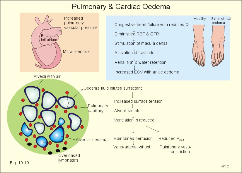 pulmonary compliance is reduced, when alveoli collapse (atelectasis) or  when left heart failure causes alveolar oedema
