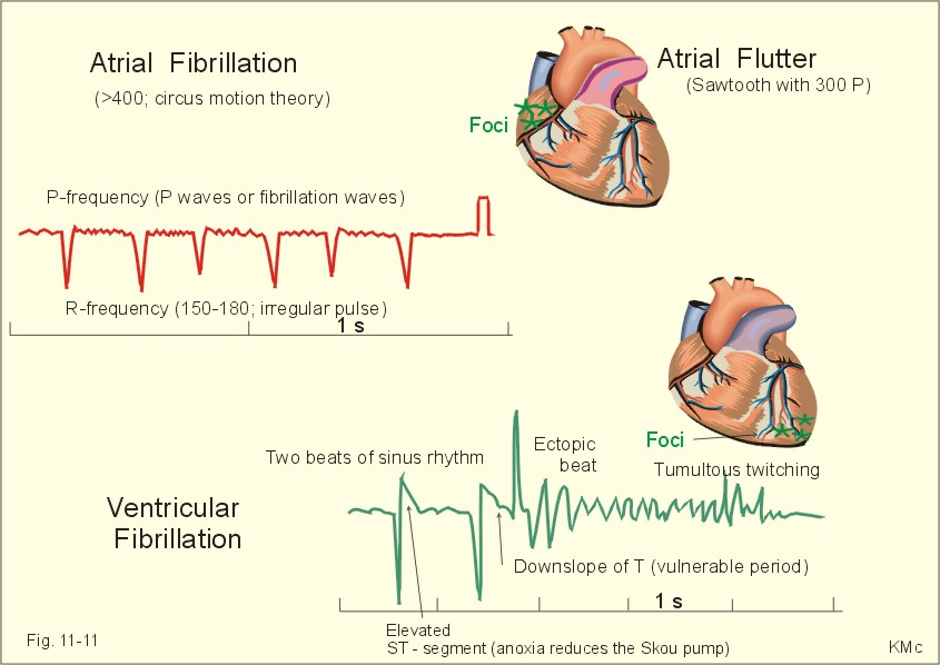acls treatment for atrial fibrillation