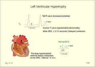 The whole ECG - a really basic ECG primer