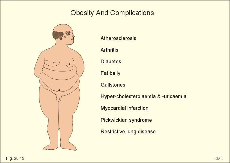 Diet and Chronic Respiratory Disease