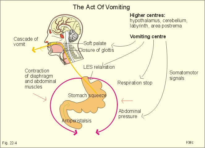 Fig  22-4   Vomiting co-ordinated by the vomiting centre Nausea And Vomiting Mechanism