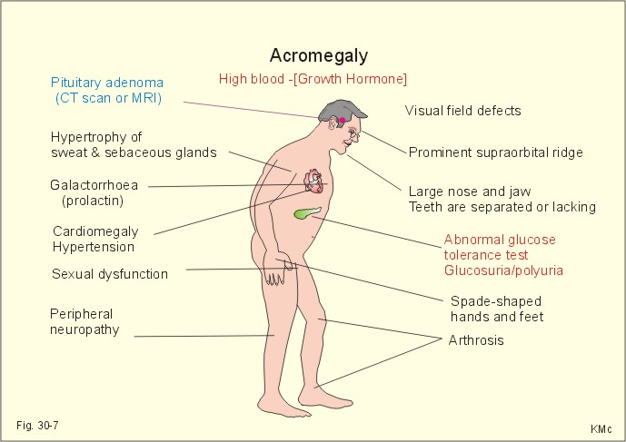 Fig 30 7 Clinical features of acromegaly
