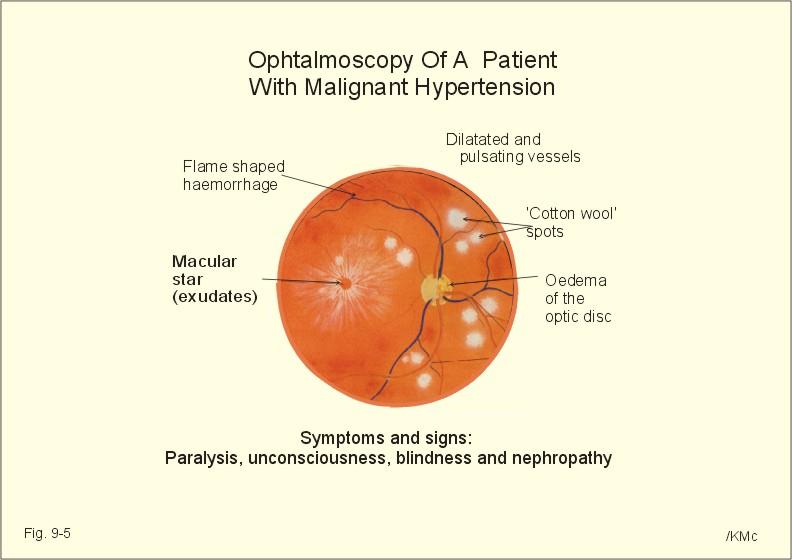 arteriole hipertónia