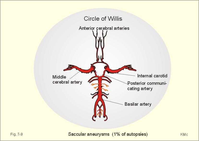 with saccular aneurysms  Saccular Aneurysm